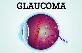 5 common glaucoma tests