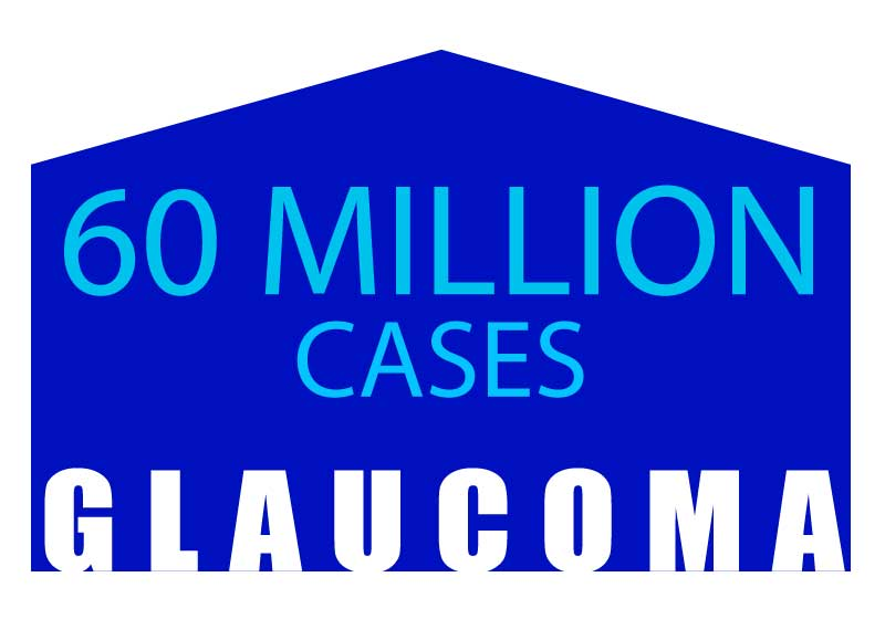 glaucoma 60 million cases