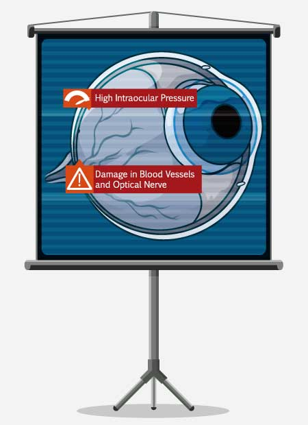 glaucoma damage info